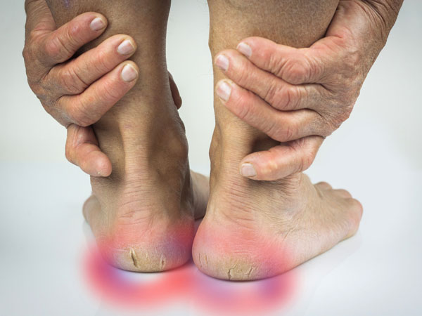 facts about cracked heels