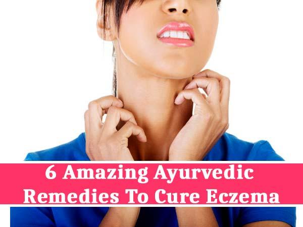 6 Amazing Ayurvedic Remedies To Cure Eczema Boldsky Com
