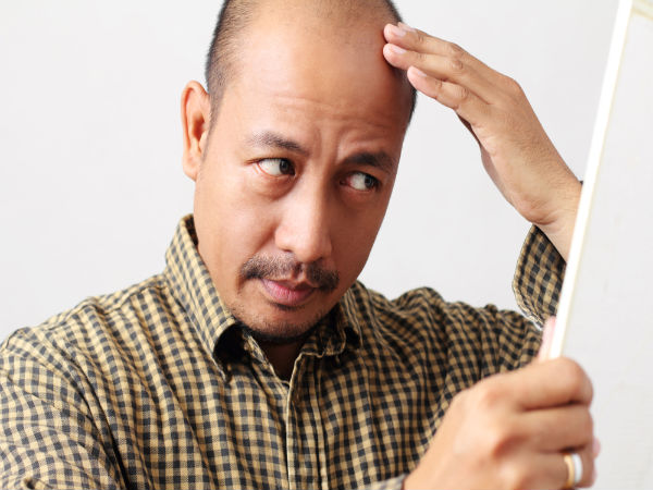 Remedies For Bald Patches On Scalp