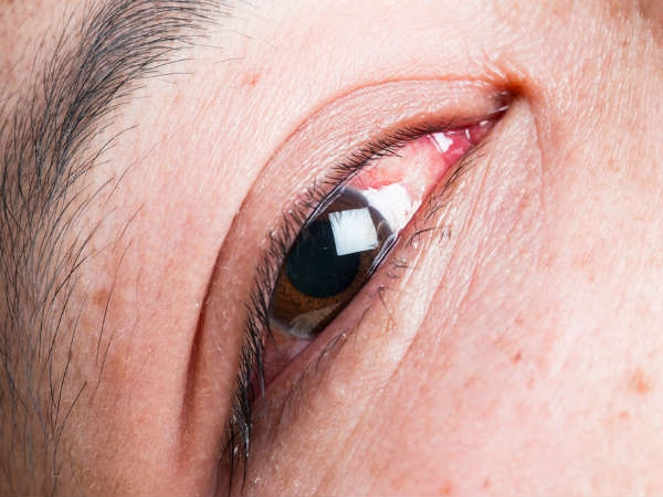 most common eye problems