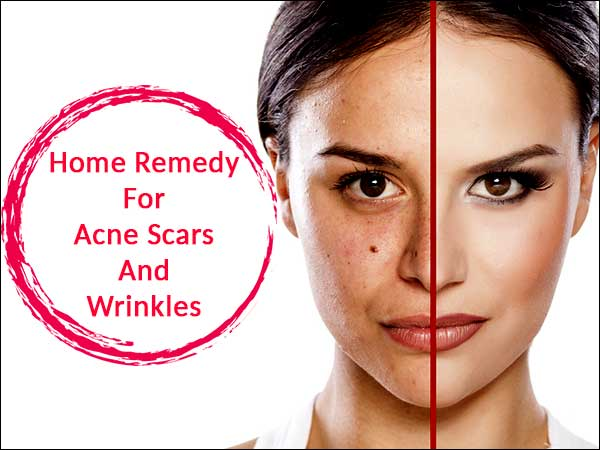 home remedy for acne scars and wrinkles natural cure for acne and