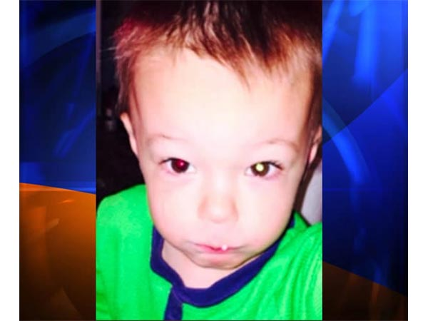 Mom Discover Cancer In Her Son's Eye