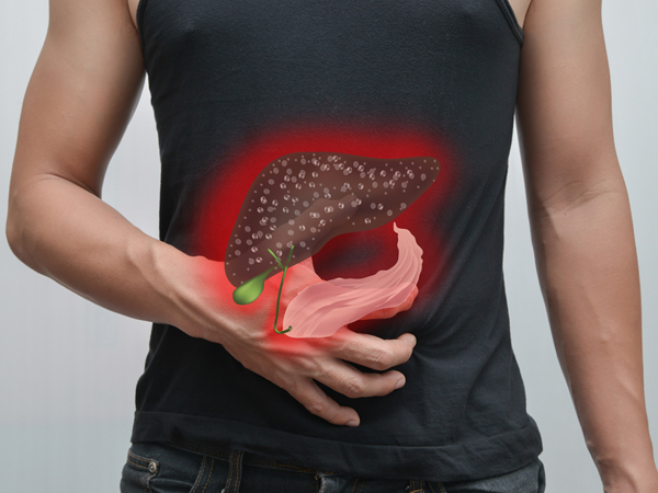 what are the causes of fatty liver
