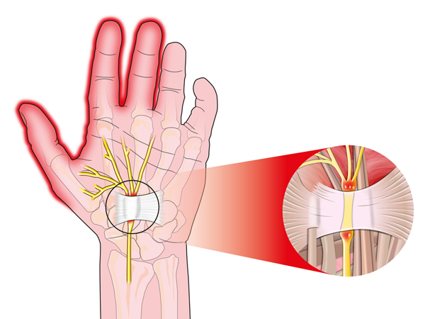 what are the types of nerve injury