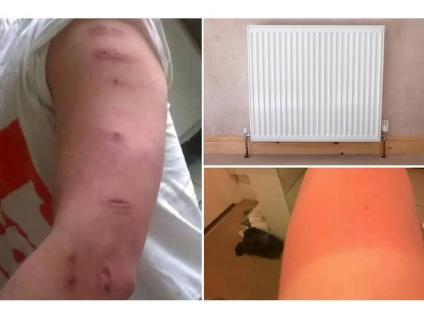The Student Who Fell Asleep On A Radiator!