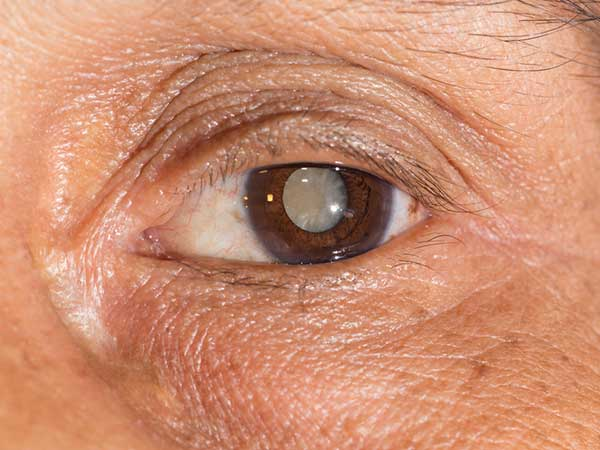 home remedy for cataracts