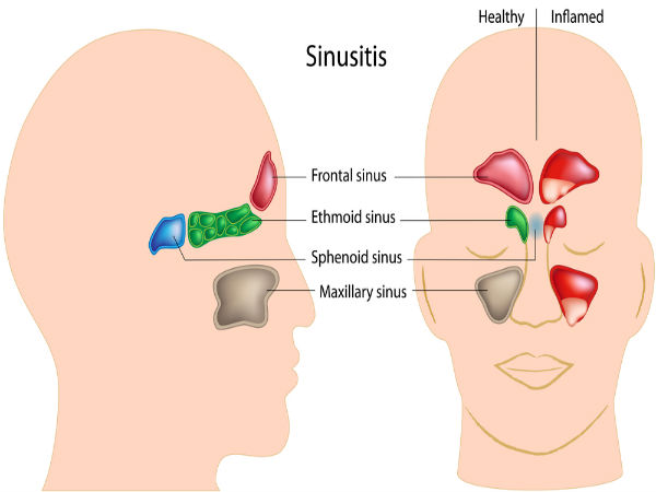 Natural Ways To Get Rid Of Bacterial Sinus Infection