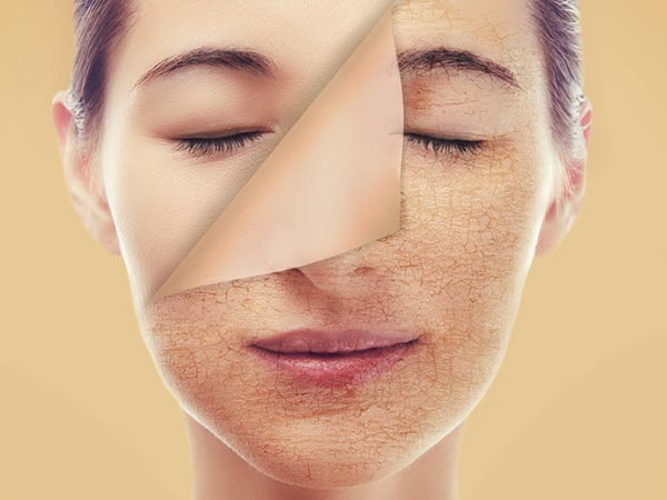 Ways To Deal With Dead Skin Problem