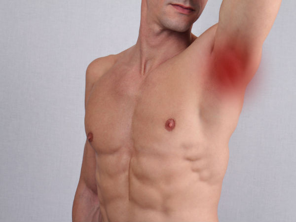 Reasons For Lump In The Arm Pit | Why Does Armpits Swell