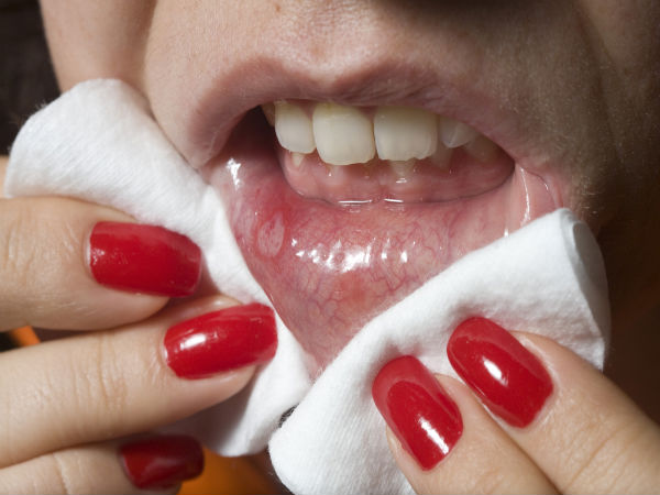How To Cure Mouth Ulcers Naturally