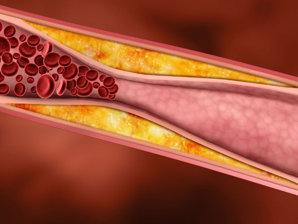 Causes Of Deep Vein Thrombosis After Surgery