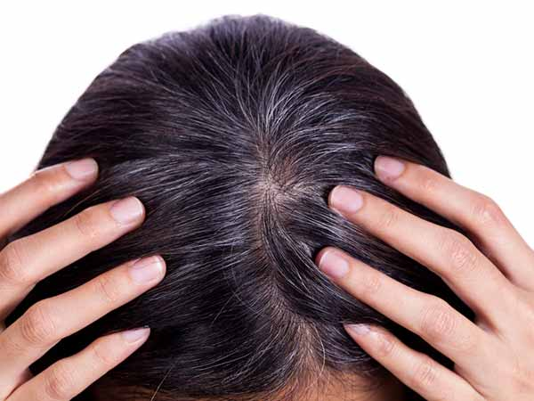 Home Remedies To Prevent Grey Hair Which Really Work