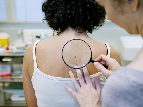 How To Check For Signs Of Skin Cancer ?