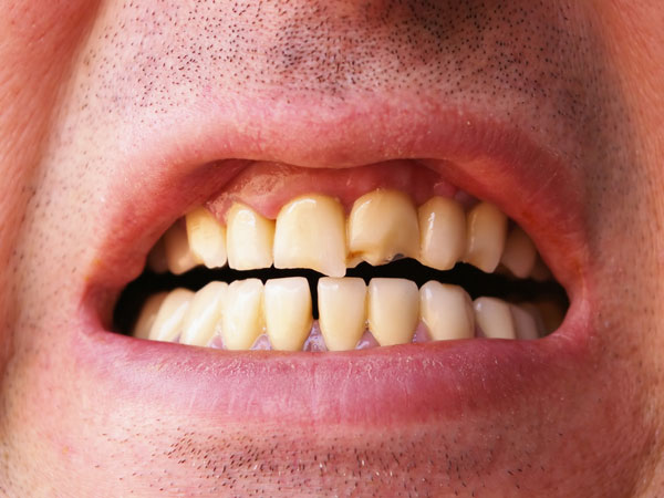 Bad Habits That Wreck Your Teeth