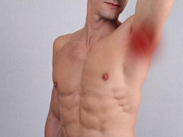 Swollen Lymph Nodes Groin Women lymph nodes lymph node...