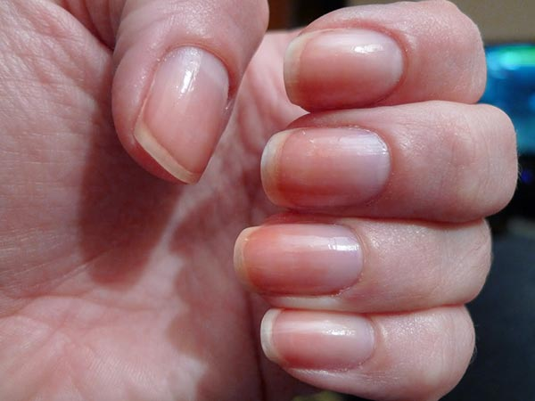 Is Your Nail Colour Different
