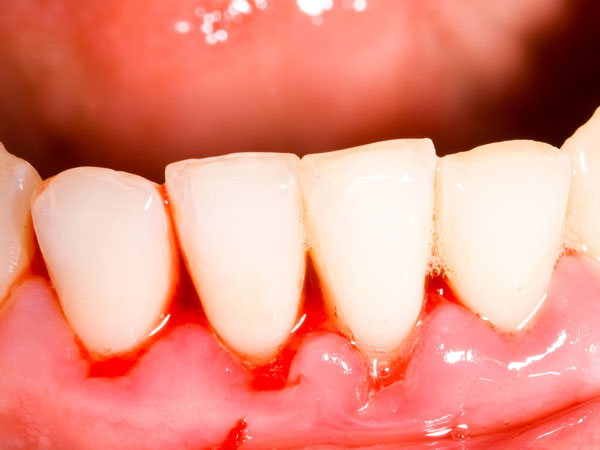 Signs That Your Gums Have An Infection