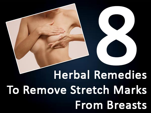 Herbal remedies for stretch marks on breasts