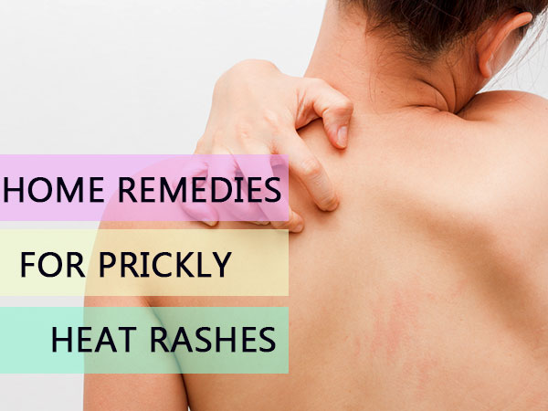 prickly heat rashes - NHS Choices Home Page