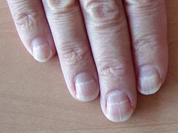 Line Texture On Nails : Nail colour texture it can be a sign of these deadly