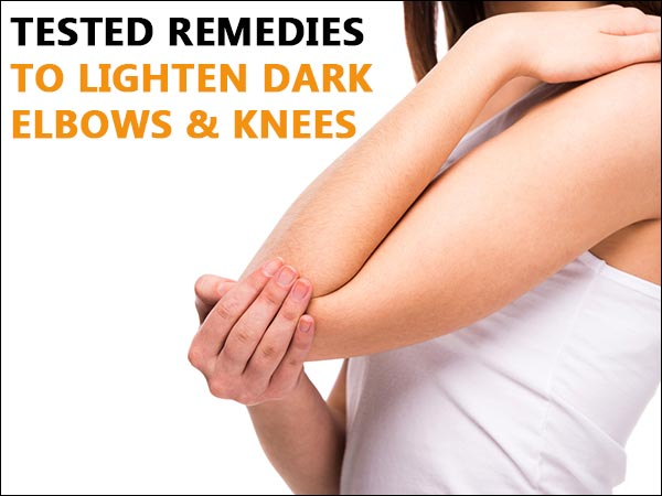 Tested Remedies To Lighten Dark Elbows & Knees