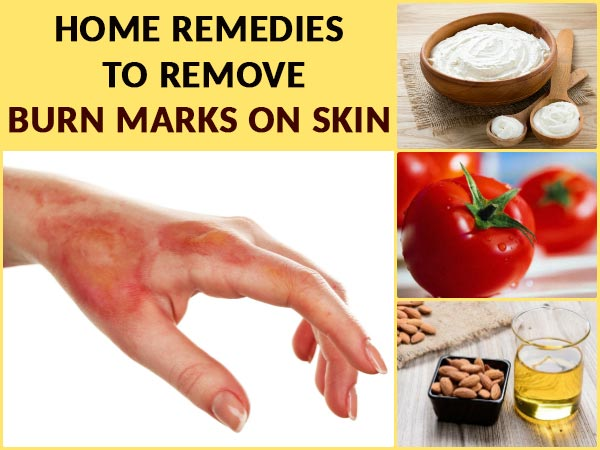 home remedies for burnt skin