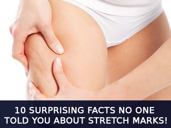 stretch mark facts