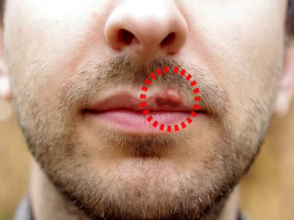 treatment for herpes