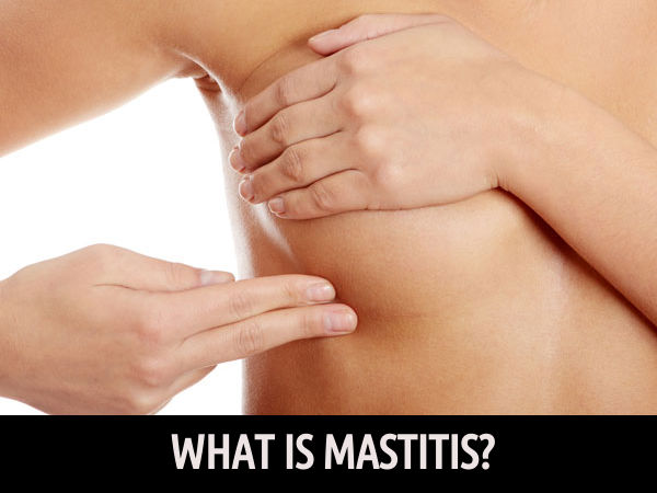 How To Get Rid Of Mastitis