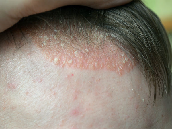 Causes And Signs Of Scalp Inflammation