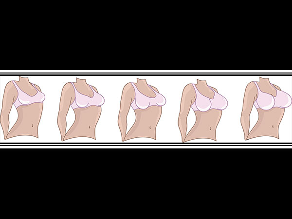Do You Know There Are 7 Types Of Breast?