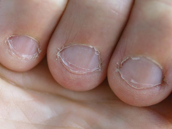 causes for nail fungus