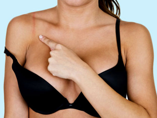 hacks to avoid marks from bras