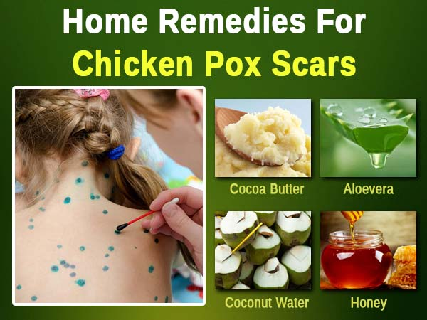 Home Remedies To Get Rid Of Chicken Pox Scars