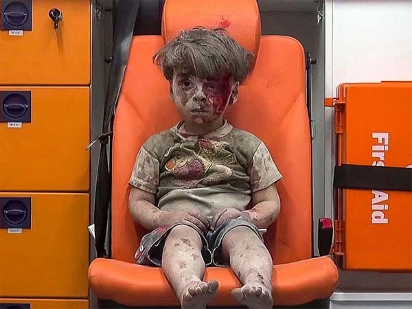 Most Heartbreaking Photos Of 2016