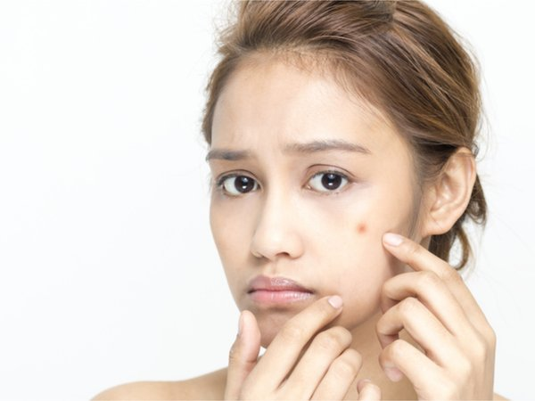 7 Ways To Fade Scars Using Home Remedies