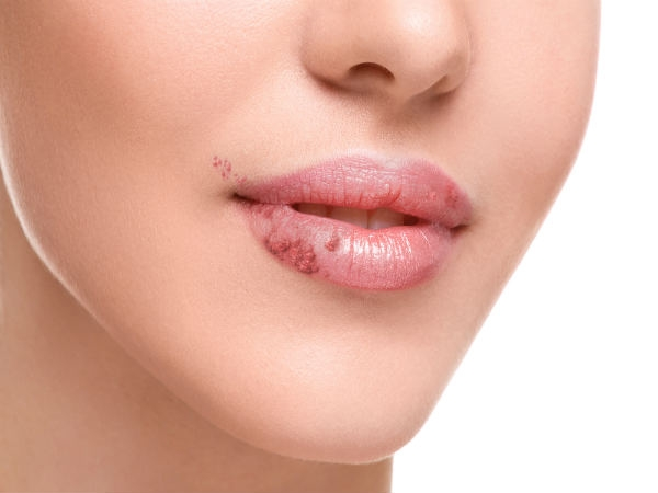 how to take care of cold sores on lips