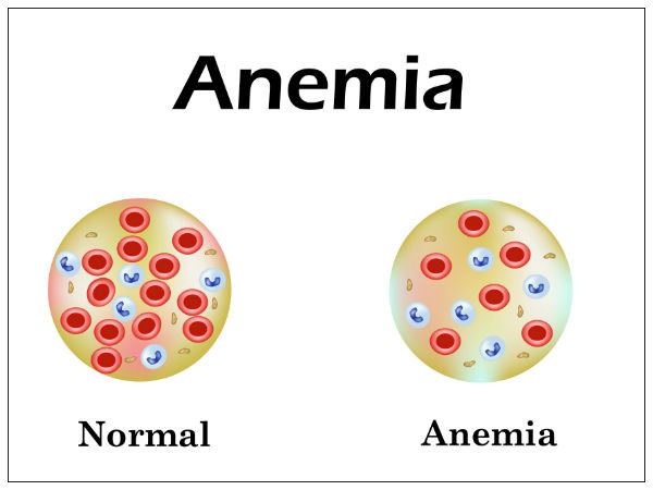 Foods For Anemia