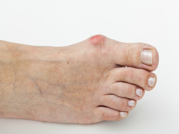 Effective Solutions For Bunion Pain, That Actually Works