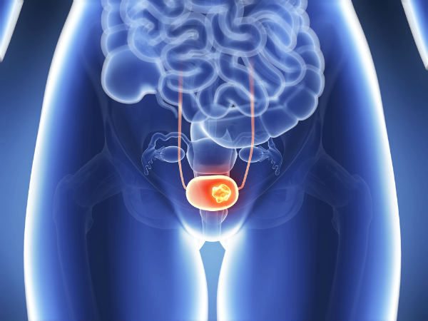 Symptoms Of Bladder Cancer Every Woman Should Know