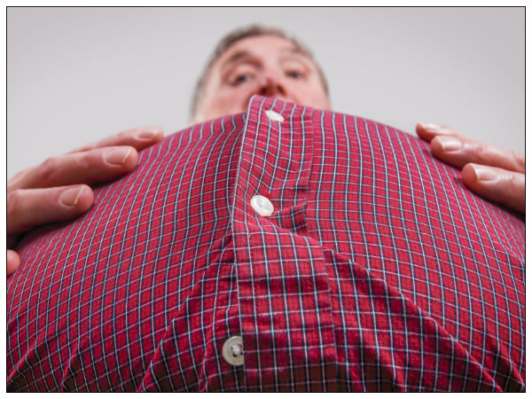 Can Excess Weight  Cause Stomach Cancer