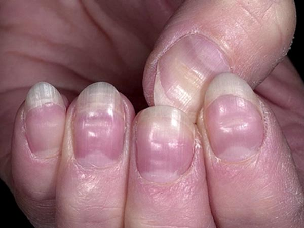 What Does The Half Moon Shape On Your Nails Mean ...