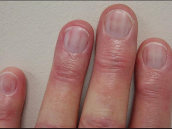 9 Symptoms Of Nails And What They Could Indicate About ... B12 Deficiency Nails