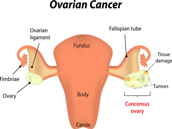 early symptoms of ovarian cancer that you must be aware of. Black Bedroom Furniture Sets. Home Design Ideas