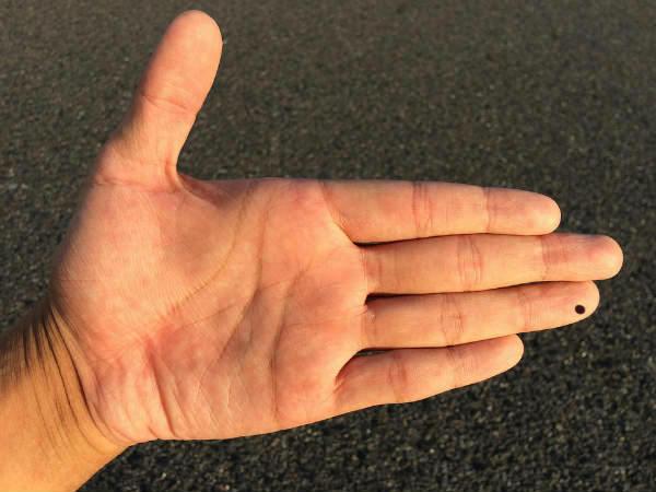 What Do Moles On Your Fingers Reveal - Boldsky com