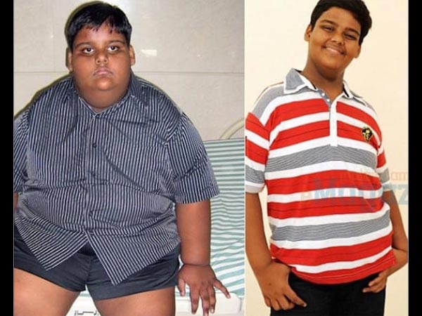 Transformation Of A Boy Who Smoked 40 Cigarettes Every Day! - Boldsky.com
