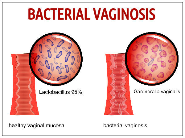 Medicine for vaginal yeast infection