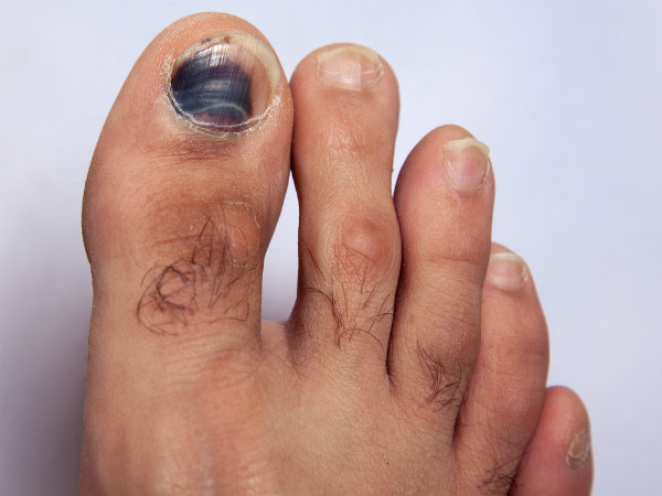 6 Dangerous Reasons Why Your Toe Nails Are Getting Darker! - Boldsky.com