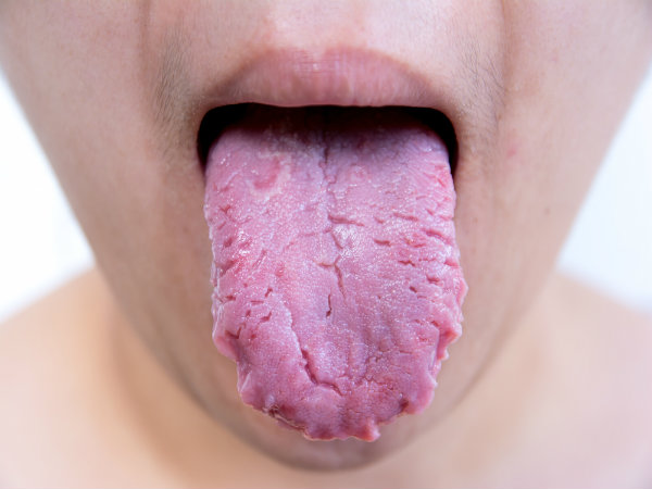 what happens when we do not brush tongue