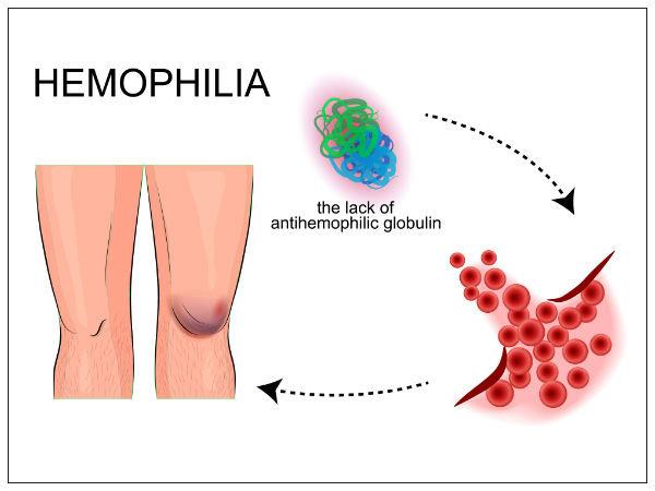 world haemophilia day lifestyle remedies for haemophilia